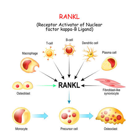 RANKL, and Activation of osteoclast. from monocyte to Precursor cell and osteoclast. Normal and pathological conditions. Receptor activator of nuclear factor kappa-Î' ligand. Tumor necrosis factor. Role of RANKL in bone loss and rheumatoid arthritis and Osteoarthritis. cytokines