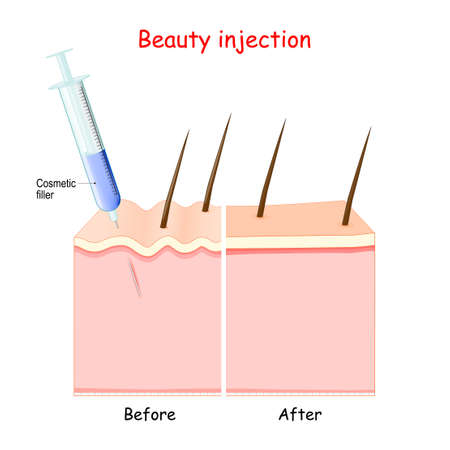 Beauty injection. syringe with Cosmetic filler. aging of the skin. Before injection (skin with wrinkles), and younger skin after cosmetology procedure. Vector illustration.