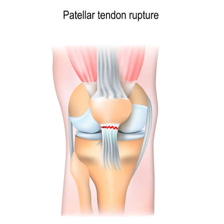 Patellar tendon rupture. Knee joint with patella and Tendon Tears.