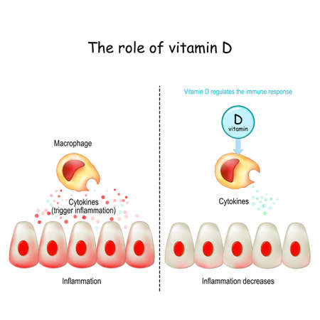Vitamin D, immune system and COVID-19. Vitamin D regulates the immune response. cytokine storm. COVID-19 complications. Difference and comparison of healthy immune response and cytokine storm