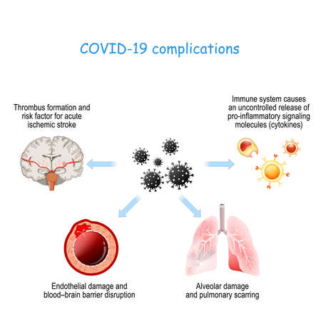COVID-19 complications. Alveolar damage with pulmonary scarring, Thrombus formation, Endothelial damage, white blood cells and cytokine storm. Иллюстрация