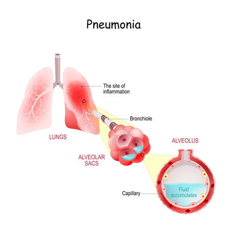 Lungs with inflammation of Severe pneumonia. COVID-19. Close-up of Pulmonary alveolus full of fluid from acute pneumonia. Cross section of Lungs Affected by coronavirus infection 矢量图像