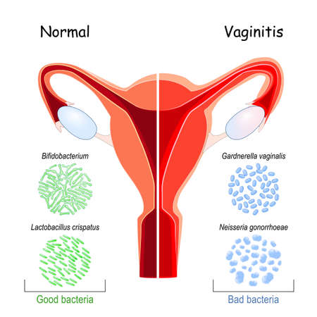 Vaginal flora. Good and bad bacteria that colonize vagina. Close-up of normal vaginal microbiome Bifidobacterium, Lactobacillus crispatus, and pathogen microorganisms: Neisseria gonorrhoeae, Gardnerella vaginalis. healthy uterus and Vaginitis or vulvovaginitis (inflammation of the and vulva)