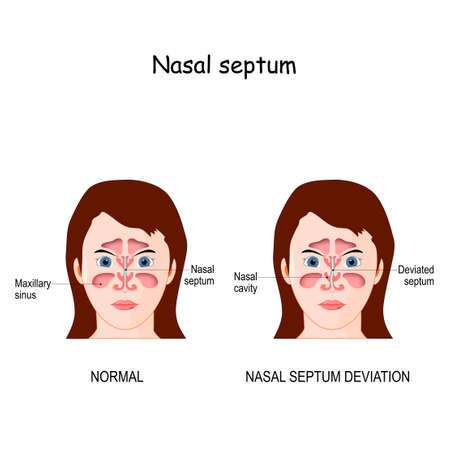 Nasal septum deviation. bone and cartilage in the nose that separates the nasal cavity into the two nostrils. difference and comparison of the nose with a normal and deviated septum