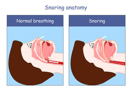 Snoring anatomy. Normal breathing and Snoring. air open and obstructed airways. Cross section of human's head, nose, mouth, trachea, and tongue.