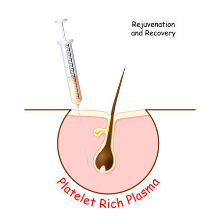 Platelet rich plasma for Rejuvenation and Recovery skin and hair. PRP treatment for hair. Icon with syringe and a hair follicle. Vector illustration