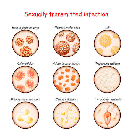 Sexually transmitted infection. Close-up of causative agents of Venereal disease.