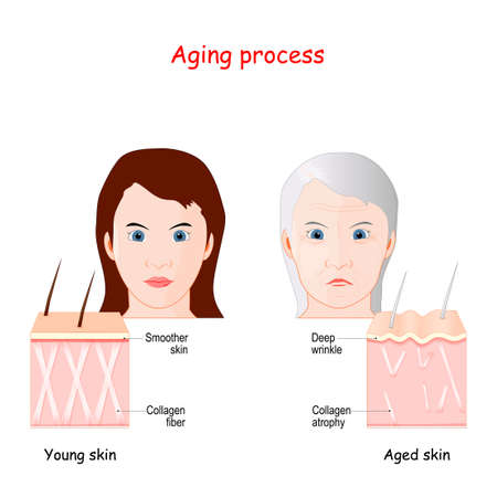 Aging process. comparison of younger, and older skin. Smoother skin of girl with normal Collagen fibers and skin of adult woman with Deep wrinkles, and Collagen atrophy