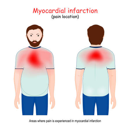 Myocardial Infarction areas. Heart attack. pain location. man and Areas on the chest and back where pain is experienced in heart disease. Vector illustration