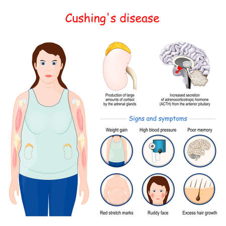 Cushing's disease. Signs and symptoms of Cushing syndrome. Vector illustration