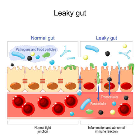 leaky gut. cells on gut lining held tightly together. in intestine with celiac disease and gluten sensitivity these tight junctions come apart. autoimmune disorder. Vector illustration