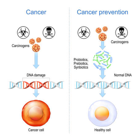 Cancer prevention. Healthy cell and Cancer cell with DNA damage. carcinogens promote formation of malignant tumor by damage the genome. Probiotics, Prebiotics, and Synbiotics are Cancer prevention Illustration