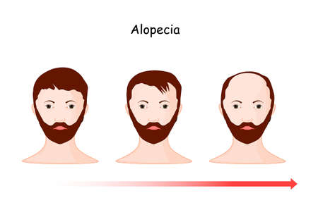 alopecia. baldness. hair loss from part of the head of a man along time. vector illustration human's head and time line