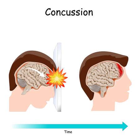 Concussion. Human's head. brain after head trauma. Vector illustration Illustration