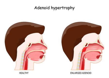 Adenoid hypertrophy. Cross section of the human's head with healthy and inflammation enlarged adenoids. vector illustration