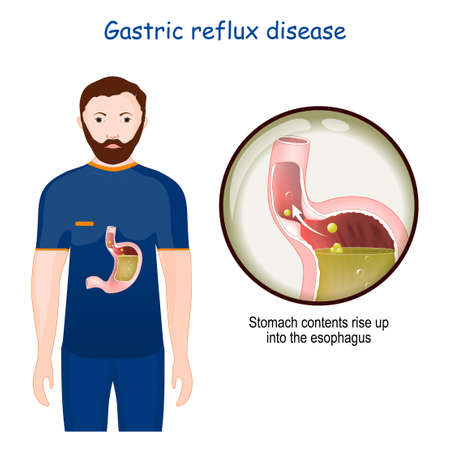 Gastroesophageal reflux disease. Close-up of stomach with GERD. chronic condition in which stomach contents rise up into the esophagus. human anatomy. vector illustration