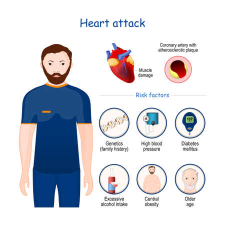 Heart attack. signs, symptoms, and Risk factors. infographic. Cross section of Coronary artery with atherosclerotic plaque. Close-up of heart with Muscle damage. Vector illustration 矢量图像