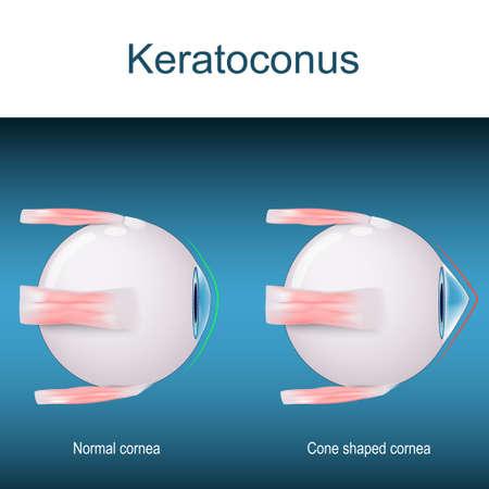 Keratoconus. disorder or disease of the eye. progressive thinning of the cornea. vector