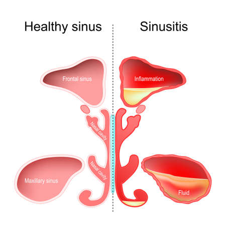 Sinusitis. Healthy nasal sinus and sinus with infection (inflammation and fluid). vector illustration