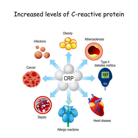CRP is a inflammation and infection biomarker. Increased levels of C-reactive protein and risk of developing different disease from diabetes, Allergic reactions, Atherosclerosis, Sepsis, Heart disease, and cancer 矢量图像