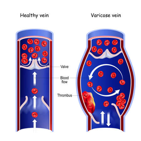 Healthy vein, and varicose vein. Cross section of normal blood vessel and thrombus in blood flow. vector illustration