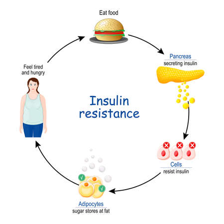 Insulin Resistance. cycle of insulin and glucose, before and after eat food. vector illustration.