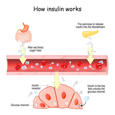 How insulin works. After eat blood sugar rises. After that the pancreas to release insulin into the bloodstream. Insulin is the key that unlocks the glucose channel in cells