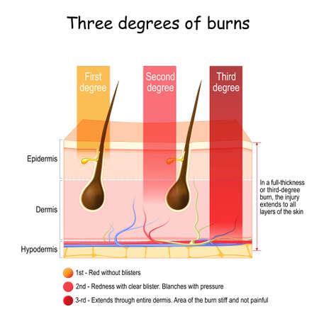 skin burn. Three degrees of burns. type of injury to skin. step of burn. Vector poster