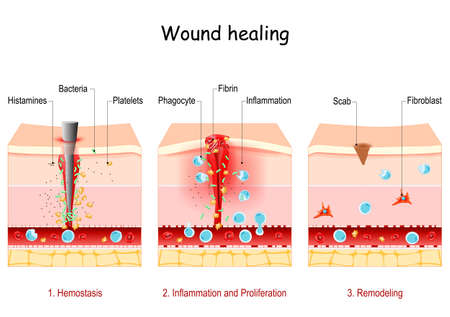 wound healing. Stages of the post-trauma repairing process. Hemostasis, Inflammatory, Proliferative, and remodeling phase. Cross section of a layers of the human skin Vector Illustratie