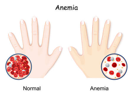 Anemia. hand of healthy human and anaemia. decrease in the total amount of red blood cells. Close-up of normal blood and RBCs of anemia. hemoglobin in the blood. comparison and difference