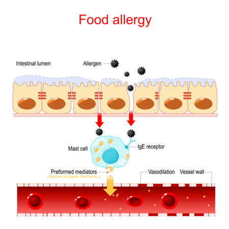 Food allergy and leaky gut. abnormal immune response to food. Vector illustration