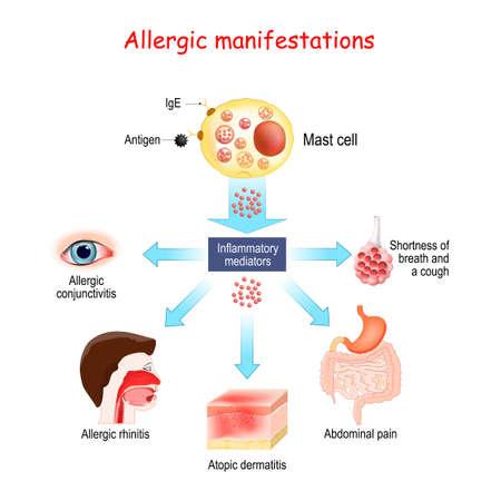 Food allergy and Allergic manifestations. Mast cell and Inflammatory mediators. Allergic conjunctivitis, atopic dermatitis, allergic rhinitis. Vector illustration.