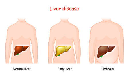 Liver diseases. Stages of liver damage. Healthy, fatty, and cirrhosis. human body with illuminated healthy and diseased internal organs. Vector illustration 矢量图像