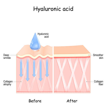 Hyaluronic acid. skin Before and After Hyaluronic acid use. comparison and difference between skin with Collagen atrophy and Deep wrinkles and Smoother skin after cosmetic procedure 矢量图像