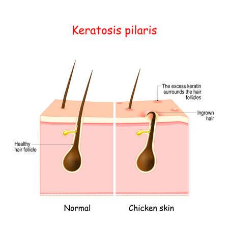 Keratosis pilaris. lichen pilaris and hair follicle. comparison and difference between healthy skin, and follicular keratosis. Skin disorder