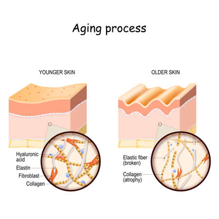 Aging process. comparison and difference between younger and older skin. Layers of the skin and close up of elastin, collagen fibers, hyaluronic acid, and fibroblast.