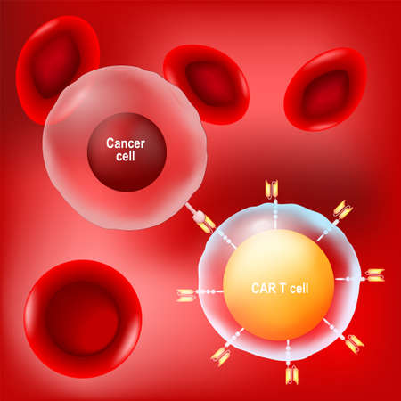 Cancer cell, CAR t-cell (lymphocyte) and red blood cells on red background. vector Poster about immunotherapy or chemotherapy cancer.