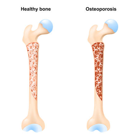 Healthy bone, and Osteoporosis. Cross section of human's femur. vector illustration