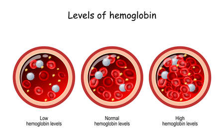hemoglobin level. Cross section of blood vessel with red blood cells. Vector illustration. comparison and difference between low and high hemoglobin levels