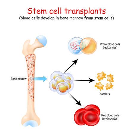 Stem cell transplants. blood cells develop in bone marrow from stem cells. erythrocytes, leukocytes and Platelets