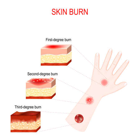 types of burns. Cross section of humans skin with First, Second and Third-degree burn. Close-up of hand with magnification of wound after burn. Vector illustration