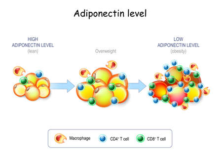 Adiponectin level. Lean people have High Adiponectin level, Obesity people with Overweight have Low Adiponectin level. Adipocytes in the fat tissue, Macrophage and T-cell in adipose tissue with inflammation
