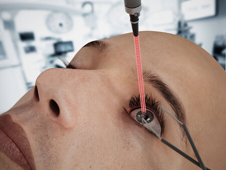 cornea: Laser eye surgery on 3D CGI character