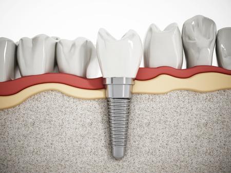 dentier: Illustration de dents montrant la structure d'implant dentaire