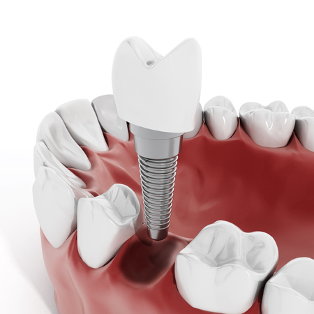 Illustration of teeth showing dental implant structure