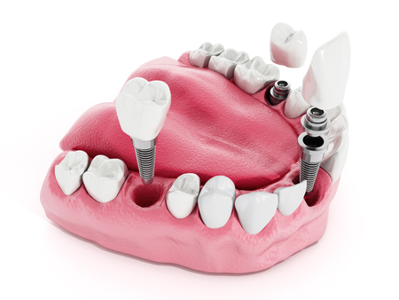 dentaire: Illustration de dents montrant la structure d'implant dentaire