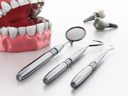 Professional dentist tools isolated on white background. 3D illustration. Banco de Imagens