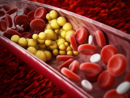Fat cells blocking the blood flow inside human vein. 3D illustration.