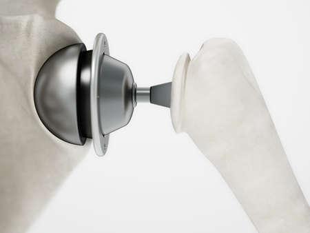 3D illustration of shoulder replacement surgery. 3D illustration.