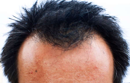 balding: Male head with hair loss, hair loss and balding front.